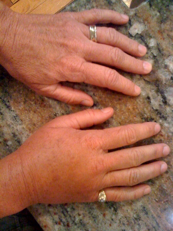 Deb's swollen hand (she doesn't usually wear a ring on her pinky!)